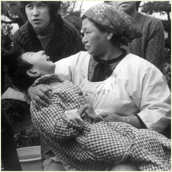 "A woman holds a victim of ""Minamata Disease"", or mercury poisoning, in Minamata, Japan, in 1973. The girl has a malformed hand, like many victims of the disease who suffer from physical deformites among other symptoms."