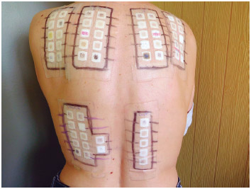 Epicutaneous test on the skin of the back.