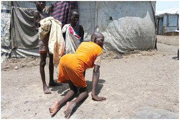 Nineteen-year-old, Nyang Maria from Be'ntiu, South Sudan, has polio and has lost the use of her legs.