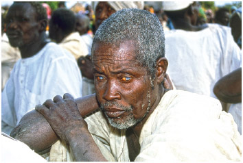"""A male farmer in Nigeria blinded by onchocerciasis (""""river blindness"""")."""