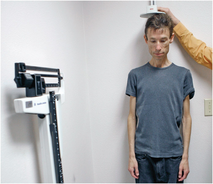 Anorexia patient being weighed and measured at the University of California San Diego.