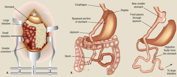 In this Roux-en-Y gastric bypass, the stomach is separated into two sections. Food is bypassed from the larger stomach to the smaller stomach.