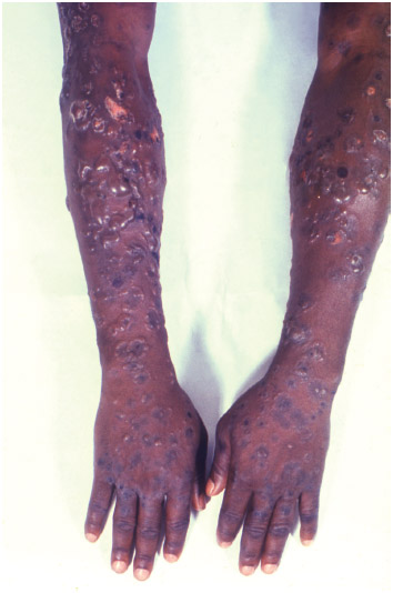 Patient's arms showing numerous cutaneous blisters, which had manifested in response to a condition known as dermatitis herpetiformis (DH). DH is an autoimmune disorder, associated with celiac disease.