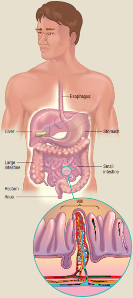 When people with celiac disease eat foods or use products containing gluten, their immune system responds by damaging or destroying villi in the intestine.