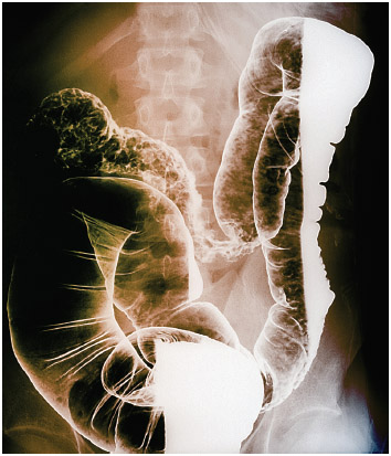 X-ray of the colon of a patient with Crohn's disease. The x-ray shows ulceration of the intestinal tract (upper left).