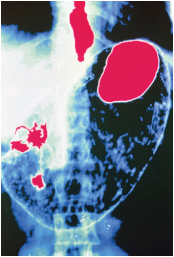 Stomach x-ray showing gastroesophageal reflux disease (GERD). The acid is shown traveling up the esophagus (in red), resulting in heartburn.
