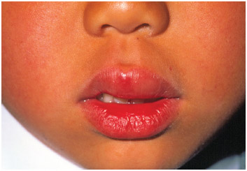 Close-up of the swollen upper lip of a six year-old boy caused by an allergic reaction to peanuts.