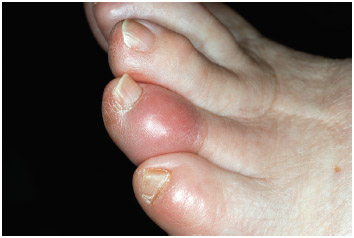 Gout affecting a 78-year-old female patient's fourth toe.
