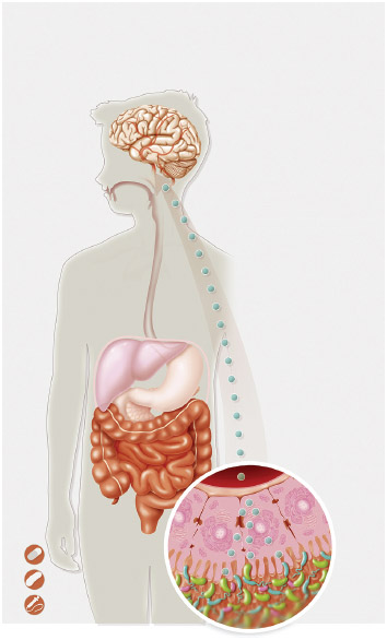 Illustration of the relationship between an imbalance in intestinal flora and autism.