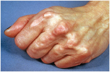 Hand of a patient with hyperlipidemia, with excessive cholesterol levels in the blood; here causing fatty lumps under the skin.