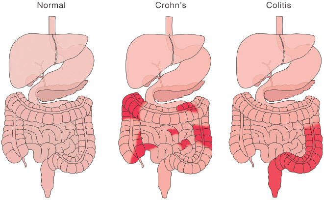 Comparison of a normal digestive tract, one with Crohn's disease, and one with ulcerative colitis. Both of these disorders are categorized as inflammatory bowel diseases (IBDs).
