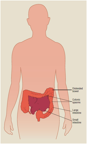 Symptoms of irritable bowel syndrome (IBS) include distended bowel and colonic spasms.