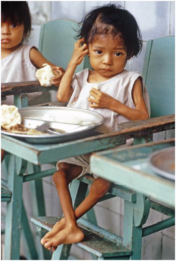Child suffering from malnutrition in Guatemala.