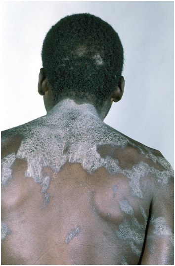 Cracked and inflamed skin of a man, a symptom that his diet is deficient in vitamin B3, a disorder that is known as pellagra.