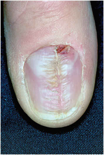 Close-up of a ridge in the fingernail of a 60-year-old male patient. Fingernail ridges may be caused by insufficient intake of both vitamin A and B.