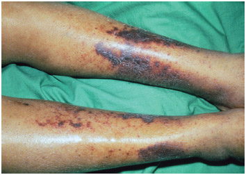 Subcutaneous bleeding over the shins of a person suffering from scurvy, a disease caused by a deficiency of vitamin C (ascorbic acid).