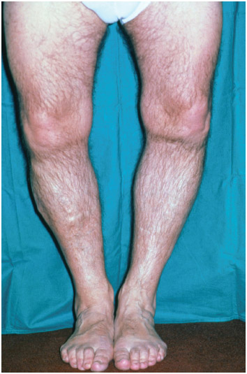 Bowed legs of a middle-aged man with rickets or osteomalacia, a nutritional deficiency of vitamin D which results in malformation of the skeleton.