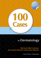 100 Cases in Dermatology