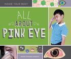 All About Pink Eye, ed. , v.