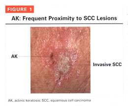 Gale Academic OneFile - Document - Actinic keratosis