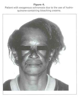 Gale Academic OneFile - Document - Dermatoses in African
