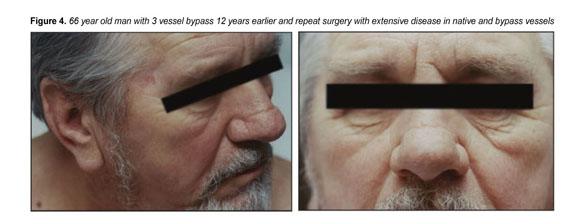 Gale Academic OneFile - Document - Transverse nasal crease