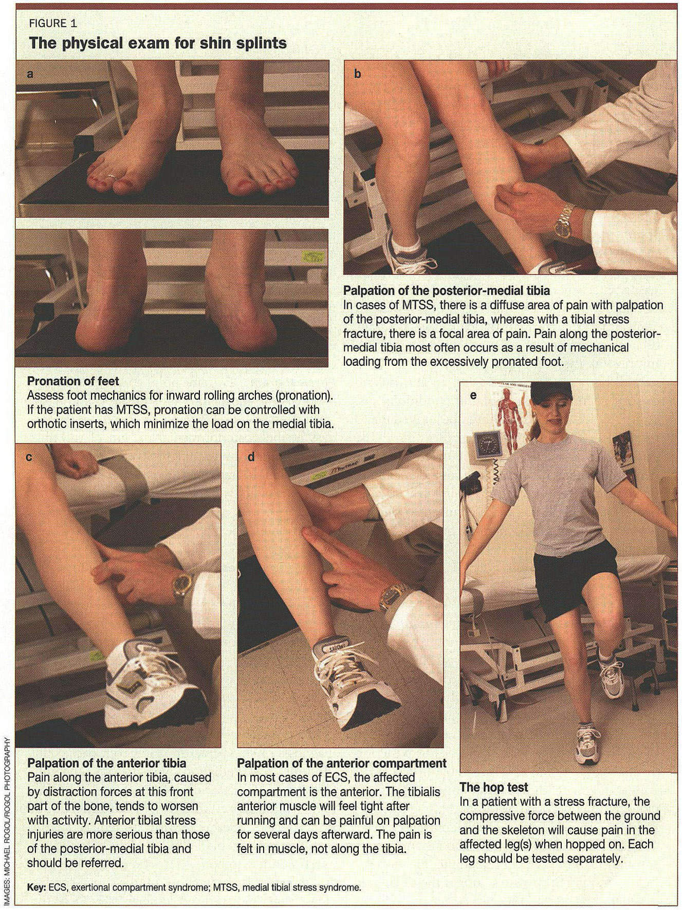 Gale Academic Onefile Document Adolescent Medicine Part 2 A Case Based Look At Shin Splints Tibial Stress Injuries And Exertional Compartment Syndrome Are Among The Entities That Can Cause Shin Pain