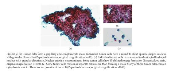 Gale Academic OneFile - Document - Neuroendocrine