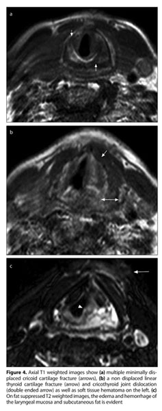 Gale Academic Onefile Document Cricoid And Thyroid Cartilage