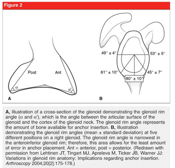 Gale Academic OneFile - Document - Tissue anchor use in