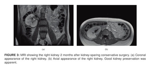 Gale Academic OneFile - Document - Giant bilateral renal