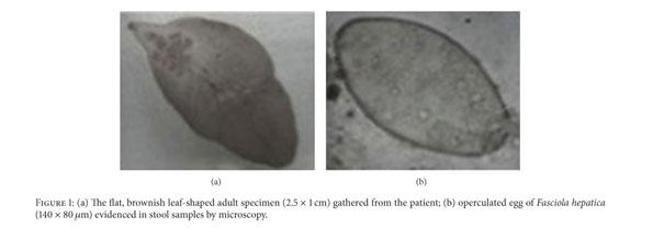 parazitológia fascioliasis