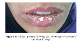 Gale Academic OneFile - Document - Exfoliative cheilitis