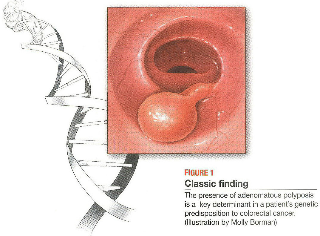 Gale Onefile Health And Medicine Document How Genetics Can Aid The Surgical Management Of Hereditary Crc In Colorectal Cancer The Patient S Dna May Dictate Treatments And The Need For Genetic Counseling