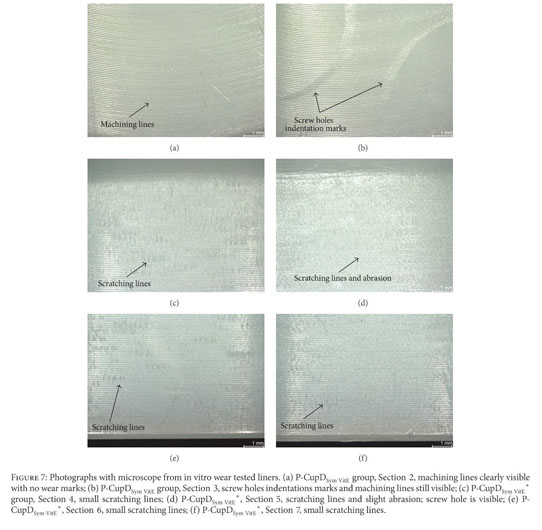 Gale Academic OneFile - Document - Backside Wear Analysis of