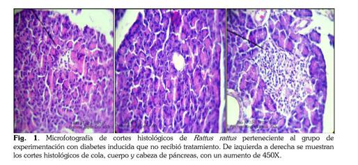 mecanismo de acción de estreptozotocina en diabetes