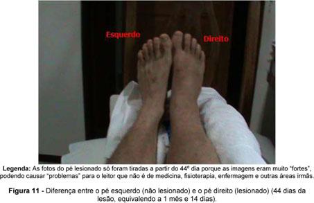 capítulo 16 lesões na parte inferior da perna tornozelo e pé