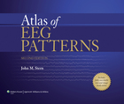 Atlas of EEG Patterns, ed. 2, v.