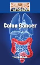 Colon Cancer, ed. , v.