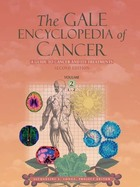 The Gale Encyclopedia of Cancer, ed. 2