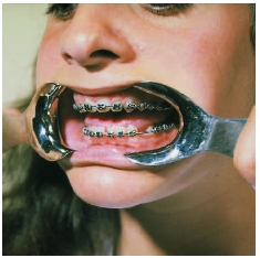 Orthodontia treatments usually include the use of braces and retainers.