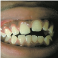 This patient's teeth are misarranged because of excessive thumb sucking.