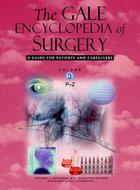The Gale Encyclopedia of Surgery, ed. , v.