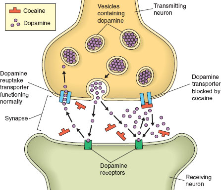 Cocaine is a mood-altering drug that interferes with normal transport of the neurotransmitter dopamine, which carries messages from neuron to neuron. When cocaine molecules block dopamine receptors, too much dopamine remains active in the synap