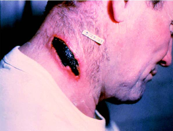 A cutaneous anthrax lesion is shown on a mans neck