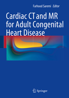 Cardiac CT and MR for Adult Congenital Heart Disease