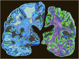 Normal brain of a 70-year-old (left) and the brain of a 70-year-old with Alzheimers disease...